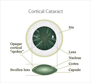 cortical_cataracts1